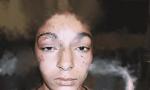 Londres : Agression brutale d'une jeune musulmane