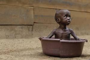Enfant victime de malnutrition