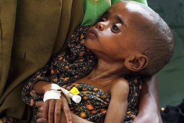 malnutrition-somalie